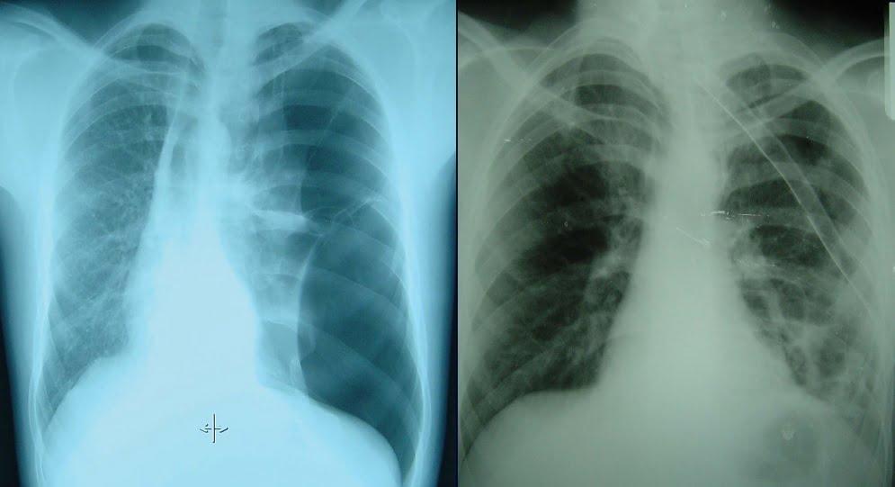 Resim2 1: Sol akciğer sönmüş ve içerede hava var. Hastaya göğüs tüpü takılarak havayı boşaltıp akciğer eski haline gelmiş akciğer grafisi