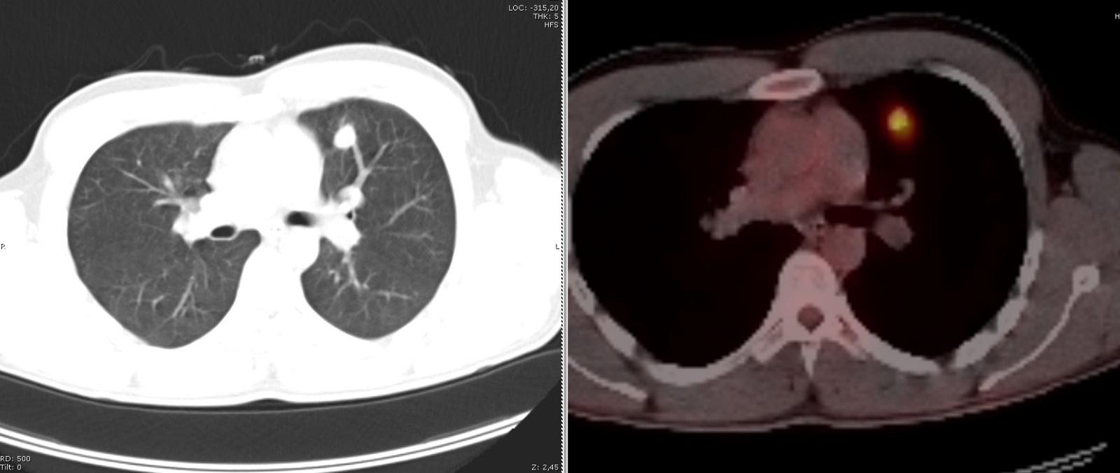 Akciğerde nodül