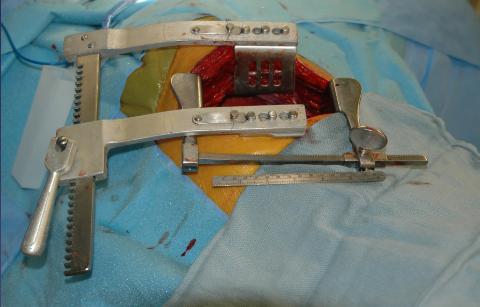 Kapalı Ameliyatlar VATS nedir