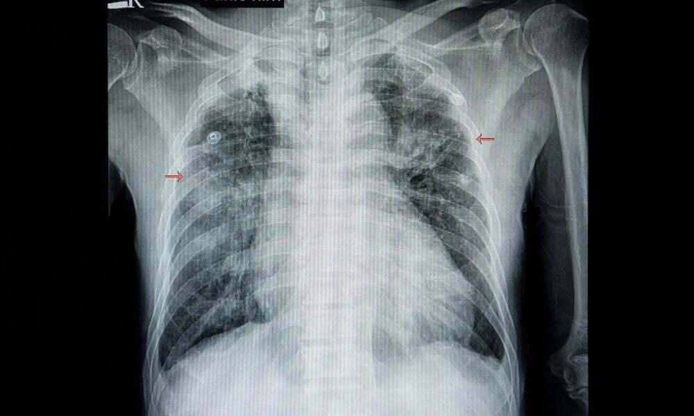 Pulmoner Sekastrasyon tedavisi