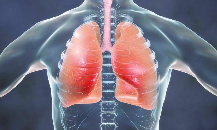 akciğer kanseri tarama programı nasıl yapılır