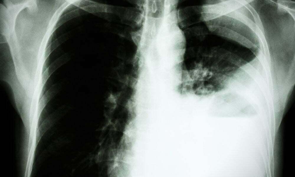 akciğer metastazı