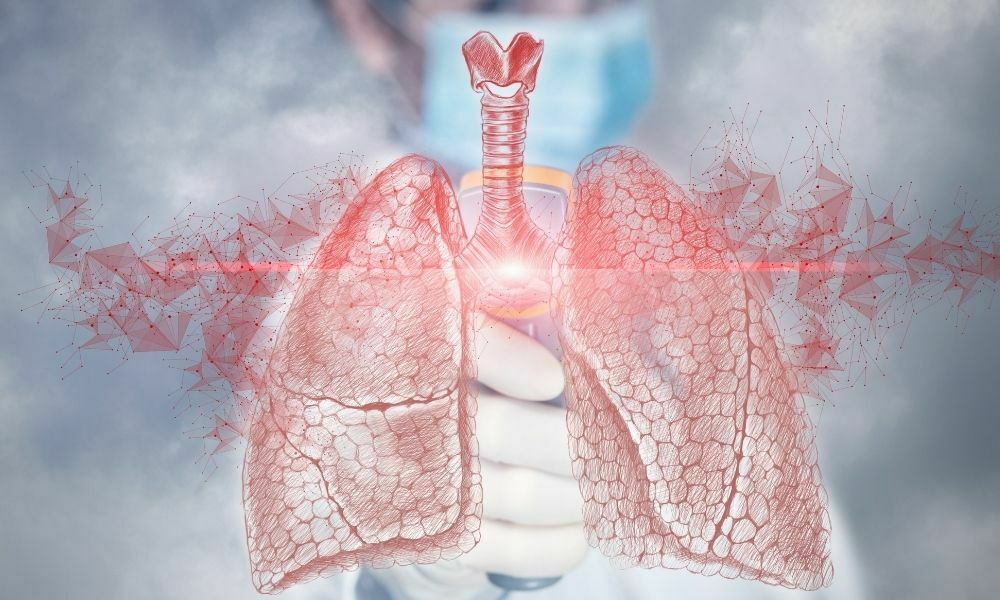 konjenital akciğer bozuklukları - rahatsızlıkları