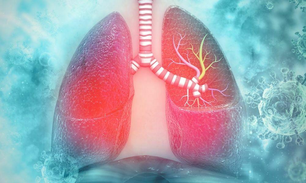 konjenital akciğer hastalıkları teşhisi
