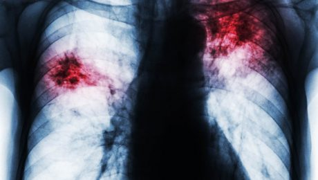 akciğer embolisi nedenleri